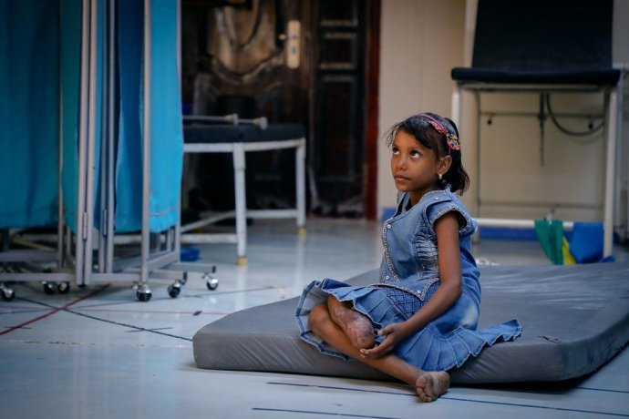 Desetiletá Jemenka Aya Omar přišla o nohu, když ozbrojení muži hodili bombu na dům její rodiny. Jednou by chtěla být lékařkou. Foto: Ehab Zawati, Lékaři bez hranic