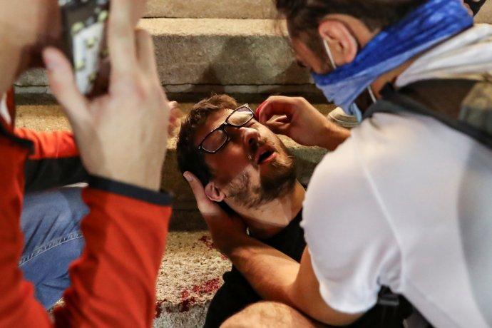 Ošetřování zraněného demonstranta: úterý 7.července vBělehradu. Foto: Marko Djurica, Reuters