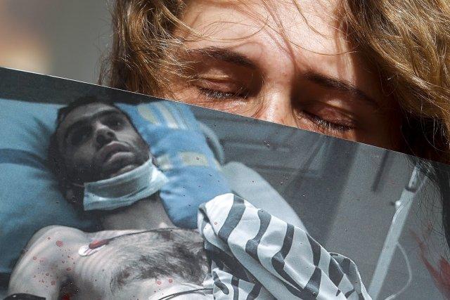 Bělorusové, kteří se dostali do konfliktu smocí, trpí fyzicky ipsychicky. Foto:ČTK/AP