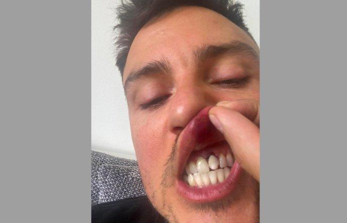 Šéfredaktora časopisu Lui Jakuba Starého napadli v centru Prahy. Držel se s přítelem za ruku. Foto: Jakub Starý